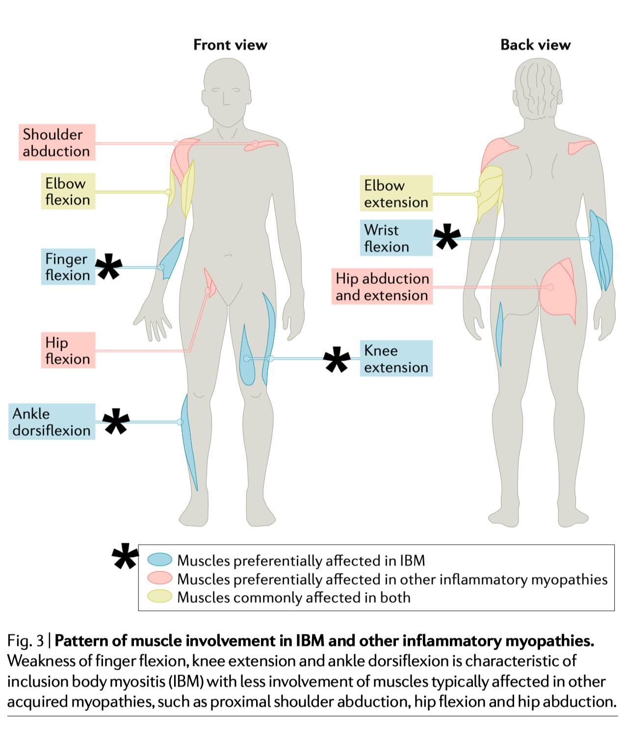 Inclusion Body Myositis.
